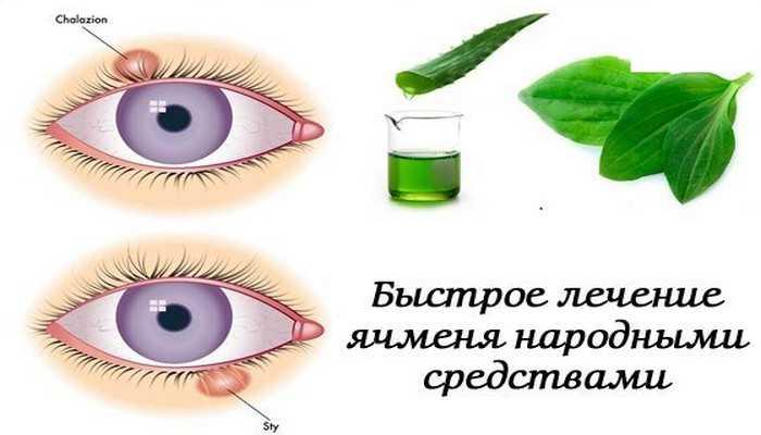 Очень помогают и примочки с травяными настоями.